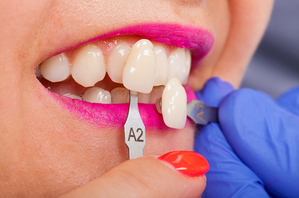 Veneers Are Meant To Last For About 10 Years Before