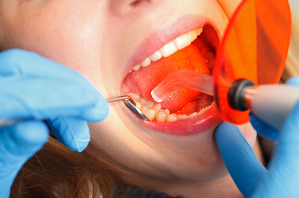 Why Is Dental Bonding Needed